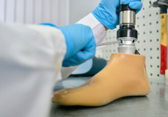 Amputation prosthetic foot