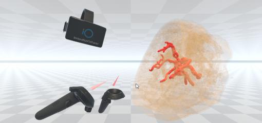 Augmented Reality, Virtual Reality and Medicine