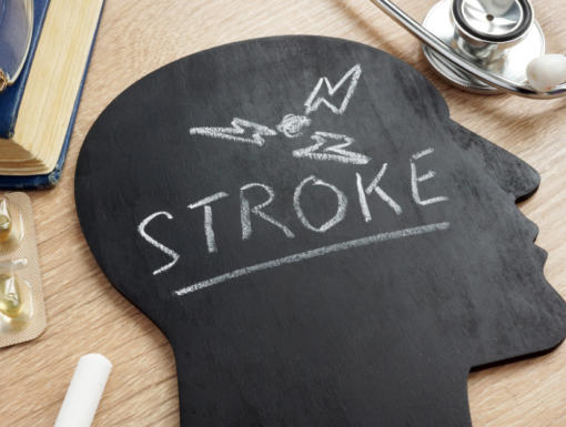 Having a Stroke? Think FAST