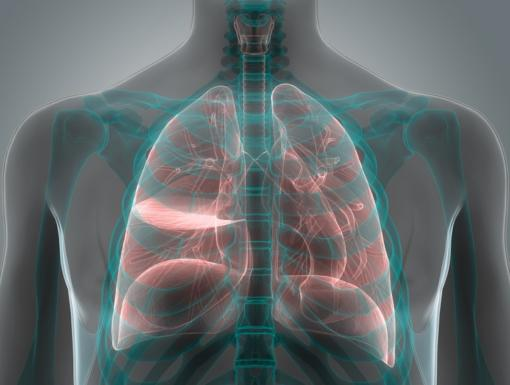 Will a Lung Cancer Screening Prevent Death?
