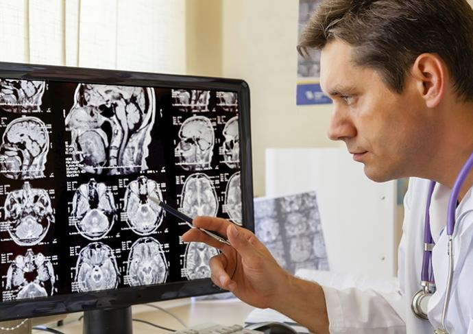 187489411 Doctor Examining Mri Scan Of The Brain