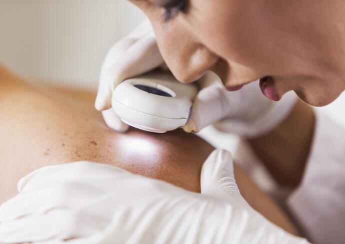 Dermatologist checking skin tag