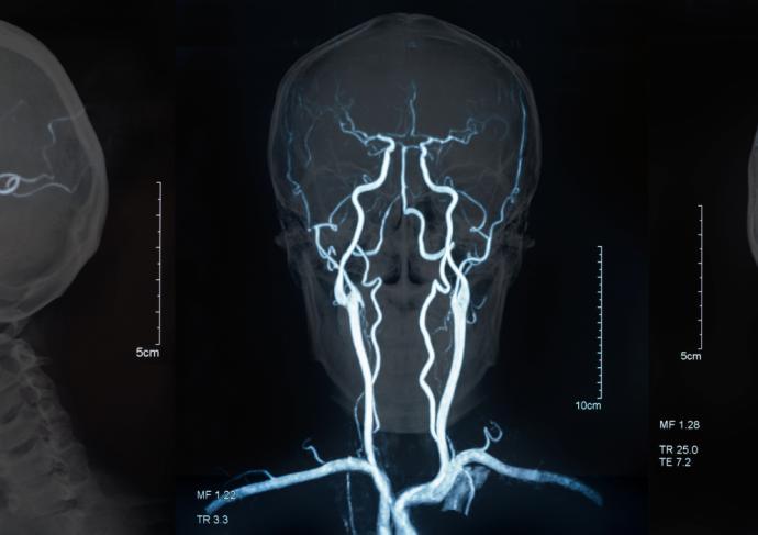 Gettyimages 876410440 Brain Mri