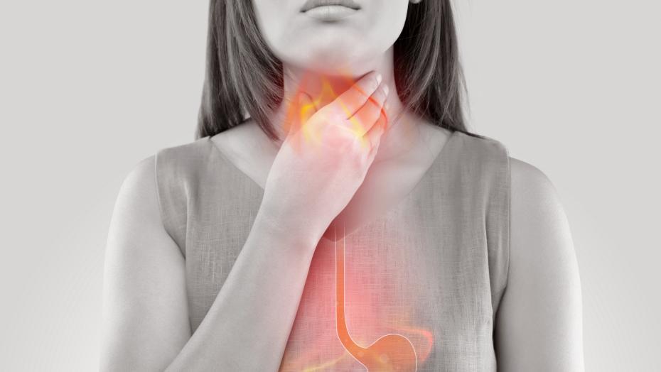 Gettyimages 880723156 Heartburn