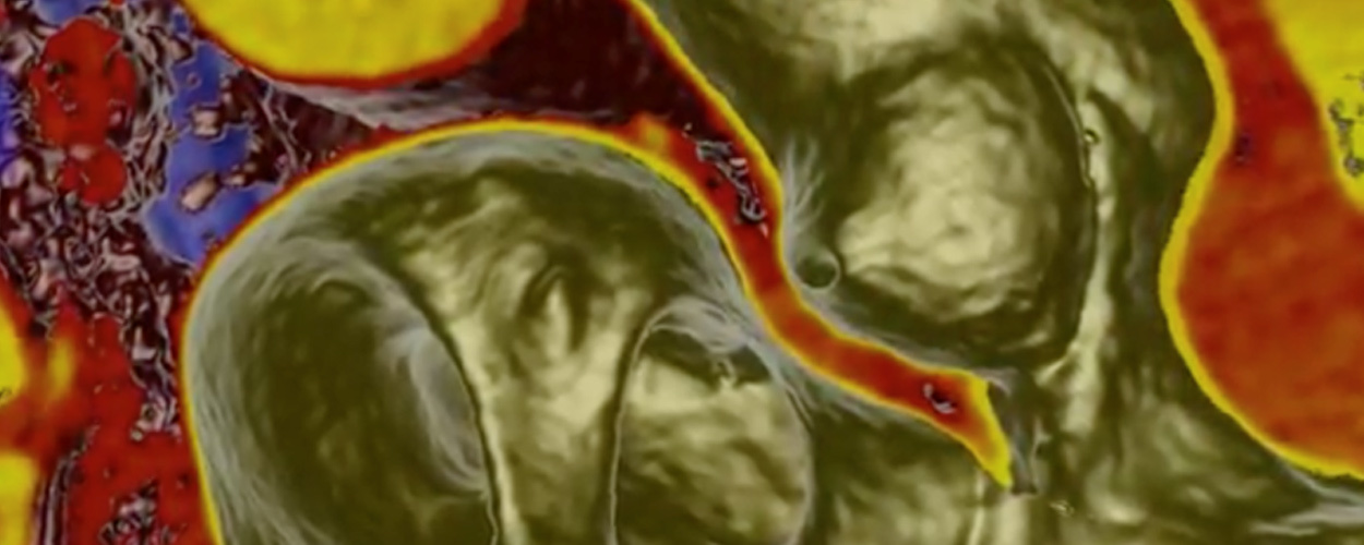 Procedural Planning with Cardiovascular CT: Focus on TAVR and LAA