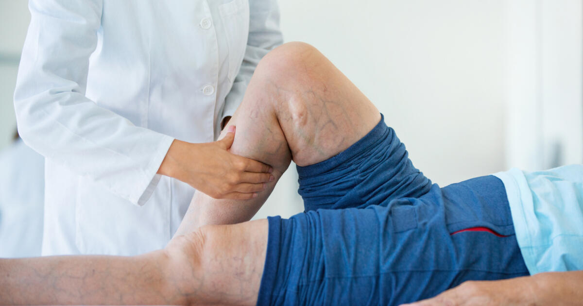 What is venous insufficiency? | Ochsner Health